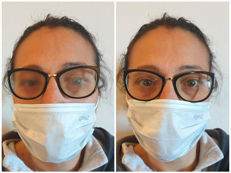 mascherina e occhiali appannati